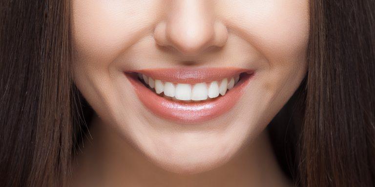 Популярные методы отбеливания зубов